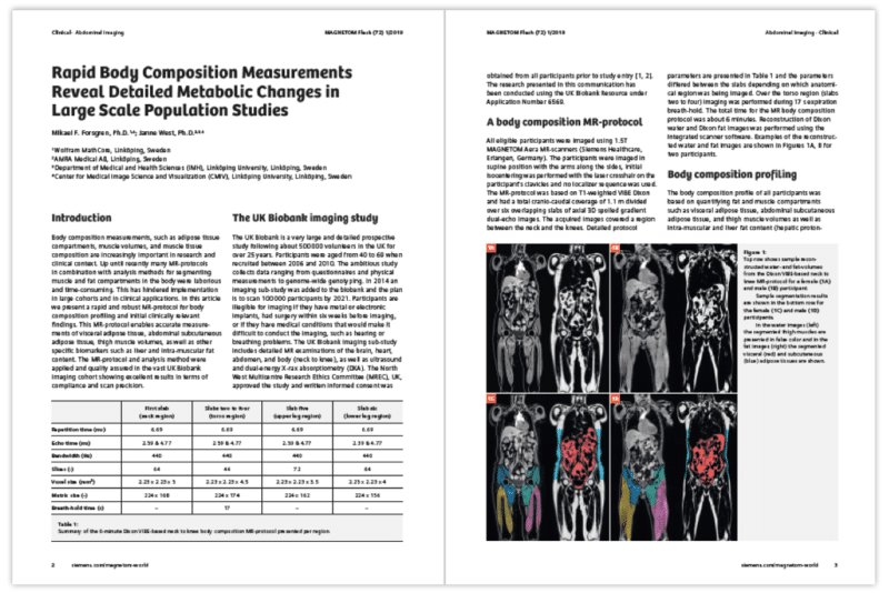 "Siemens Publish AMRA's Article ""Rapid Body Composition Measurements Reveal Detailed Metabolic Changes in Large-Scale Population Studies"""